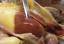 bệnh ký sinh trùng đường máu
